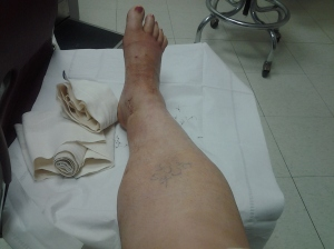 My leg after 2 weeks in a cast.