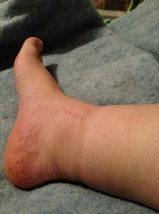 My Painful Swollen Ankle